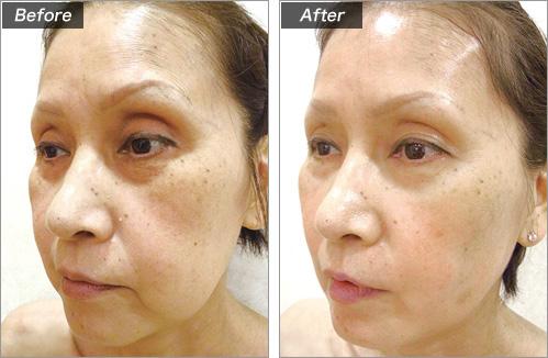 ミラクルリフト+PRP療法 の症例写真