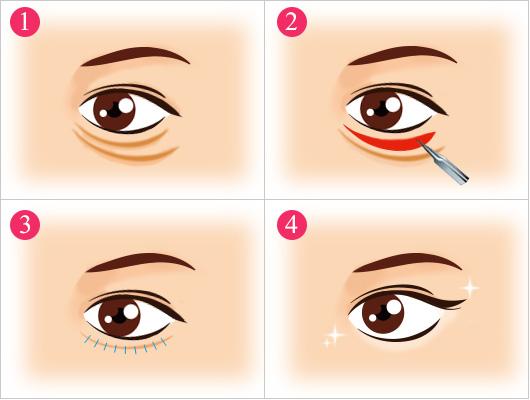 膨らみ 目の下 の 実は病気の可能性も?目の下のたるみ・ふくらみに関する病気