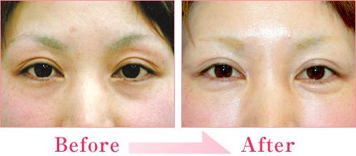 涙袋形成術(ヒアルロン酸注入) 症例写真4