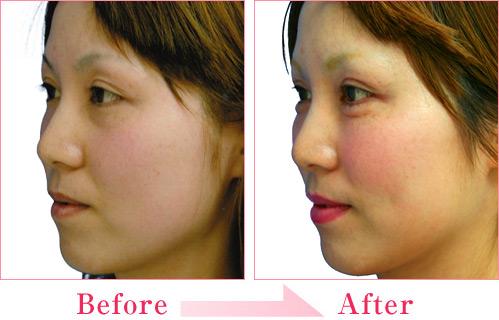 涙袋形成術(ヒアルロン酸注入) 症例写真5