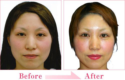 涙袋形成術(ヒアルロン酸注入) 症例写真3