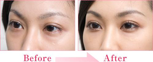 涙袋形成術(ヒアルロン酸注入) 症例写真2
