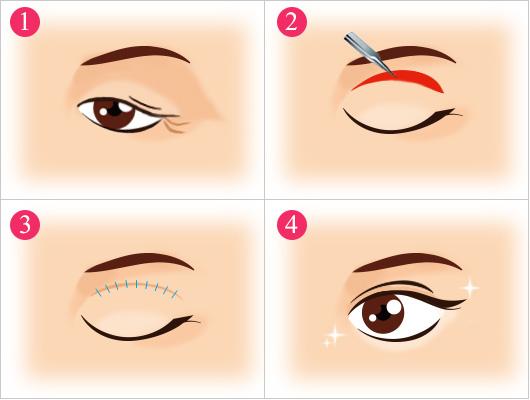目の上のたるみの治療方法