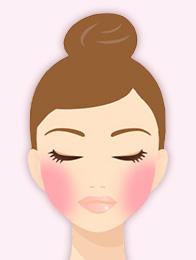 赤ら顔(毛細血管拡張症)