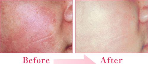 赤ら顔の症例写真