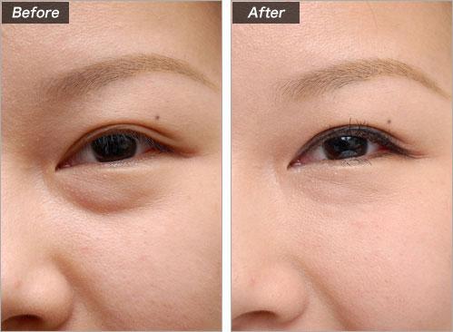 しわ(目の下)ヒアルロン酸注入 の症例写真