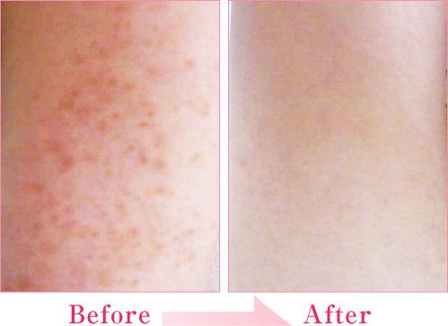毛孔性苔癬(もうこうせんたいせん) の症例写真