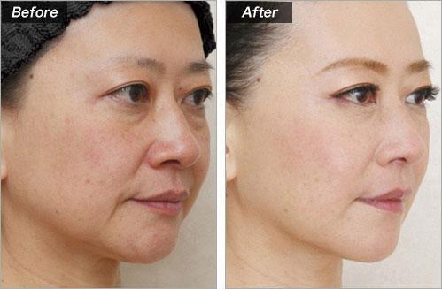 しわ(目の下・ほうれい線)PRP療法 の症例写真