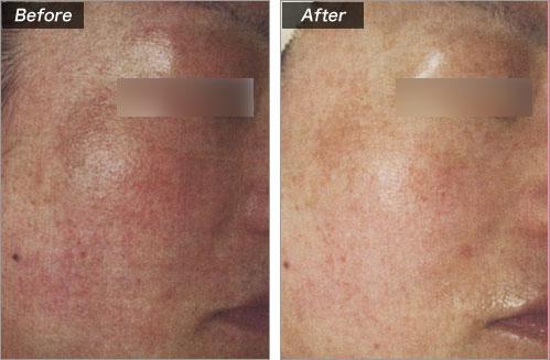 赤ら顔 の症例写真