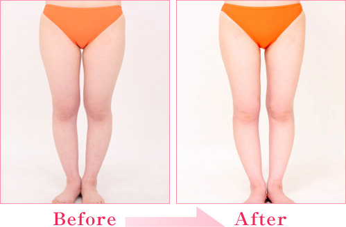 脂肪吸引・太もも+脂肪注入(伊藤まどかさん) の症例写真