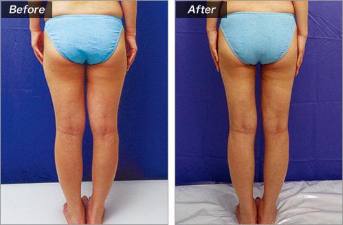 脂肪吸引・太もも(2児のお母様・楢崎真紀さん) の症例写真