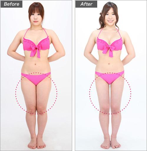 脂肪吸引・太もも(大学生・成瀬まりさん) の症例写真