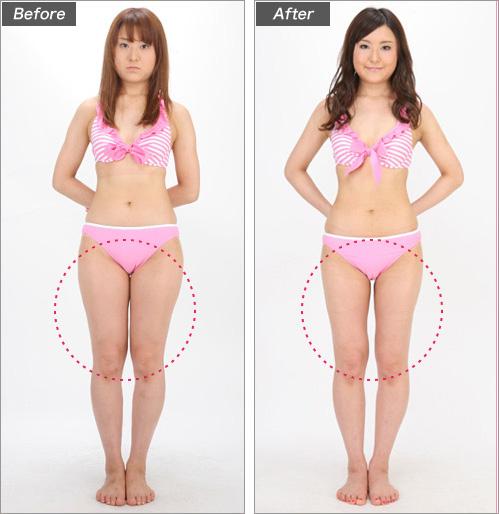 脂肪吸引・太もも(会社員・大沢美香さん) の症例写真