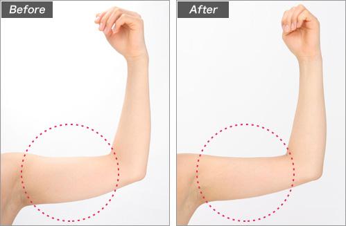 メソセラピー・二の腕(会社員・大沢美香さん) の症例写真