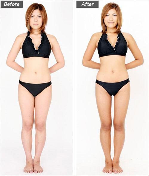 脂肪吸引・太もも(グラビアモデル・清水志保さん) の症例写真