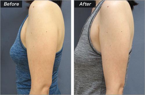 メソセラピー脂肪溶解注射 の症例写真