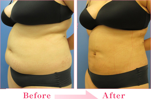 脂肪吸引・腹部全体+頬~顎下 の症例写真