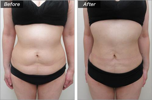 脂肪吸引・腹部+背部 の症例写真