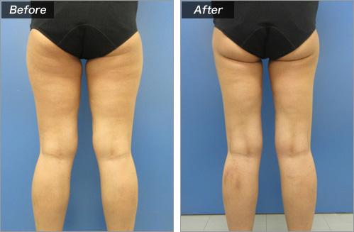 脂肪吸引・大腿全周+お尻下 の症例写真