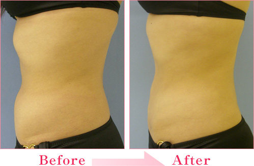 脂肪吸引(お腹+腰) の症例写真