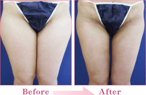 脂肪吸引(太もも・ふくらはぎ) の症例写真