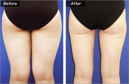 脂肪吸引(太もも+腰部) の症例写真