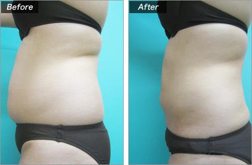脂肪吸引(腹部) の症例写真