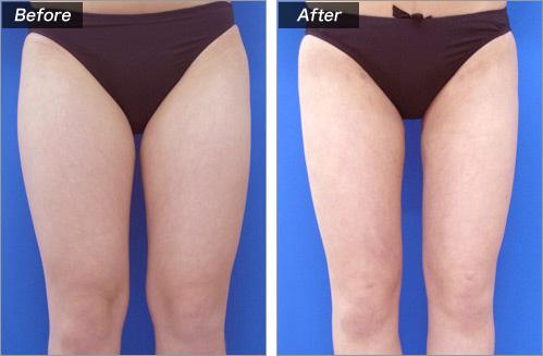 脂肪吸引(太もも) の症例写真