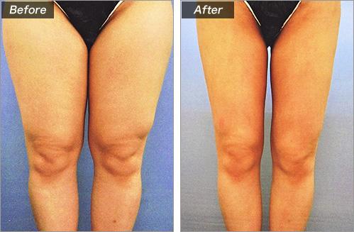脂肪吸引・ひざ上 の症例写真