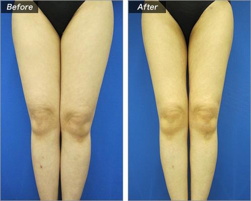 脂肪吸引・ひざ上下 の症例写真