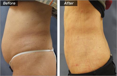 脂肪吸引・腹部 の症例写真