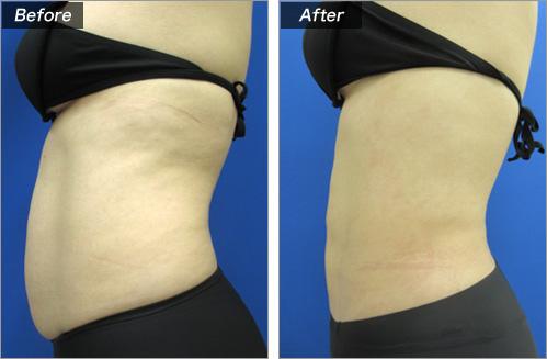 脂肪吸引・全腹部+腰 の症例写真