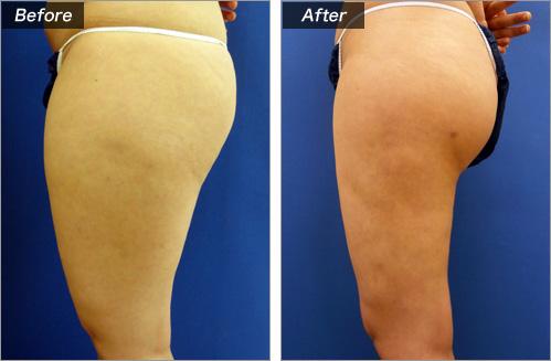 脂肪吸引・太もも の症例写真