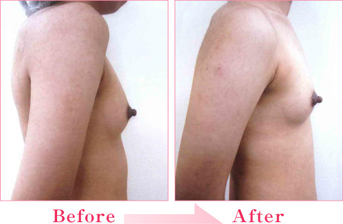 脂肪注入法+PRP療法 の症例写真