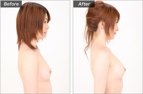 脂肪注入法(グラビアモデル・藤井美咲さん)※脂肪吸引箇所:お腹 の症例写真
