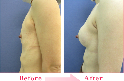 豊胸(人工乳腺法) の症例写真