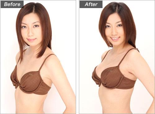豊胸(グラビアモデル・神崎 唯さん) の症例写真