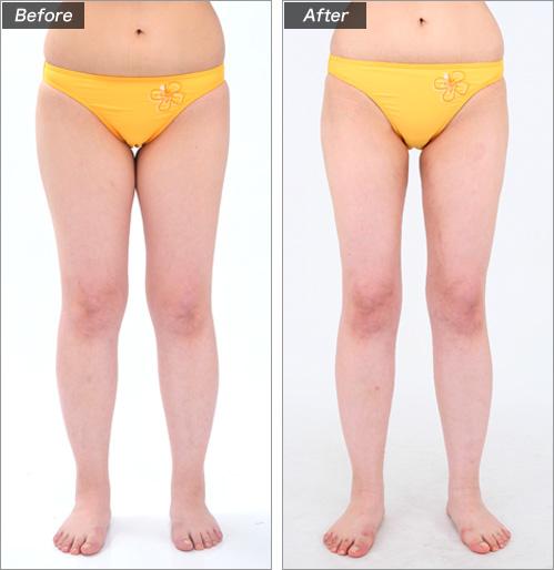 脂肪注入法(川口真由さん) の症例写真