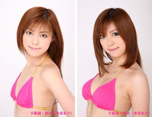 豊胸(グラビアモデル・河合つばきさん) の症例写真