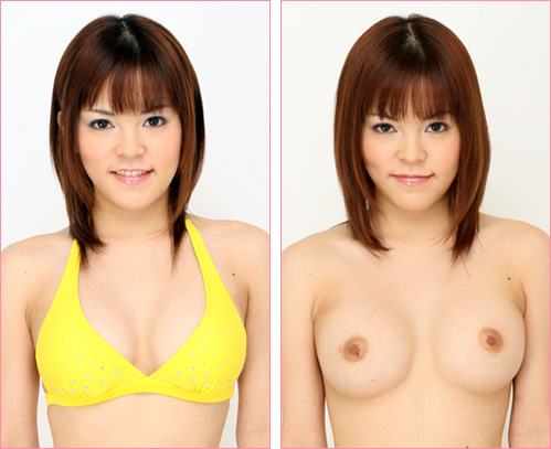 豊胸(グラビアモデル・小島 綾さん) の症例写真
