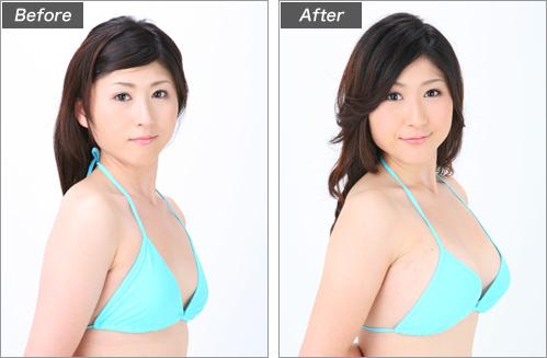 人工乳腺法(岡本さくらさん) の症例写真