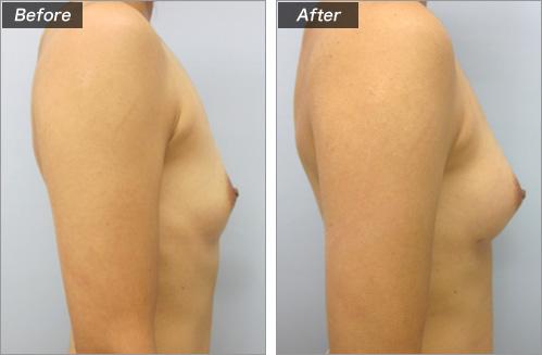 ピュアグラフト脂肪注入法 の症例写真