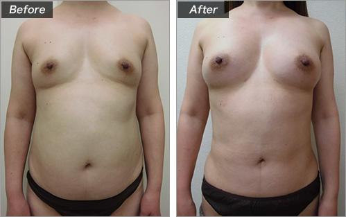 脂肪注入法 の症例写真