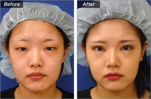 まぶた脂肪取り+眼瞼下垂+目頭切開 の症例写真