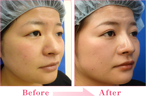 目頭切開法+隆鼻術+鼻尖縮小 の症例写真