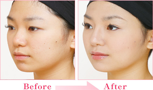 二重(埋没法/挙筋法)+隆鼻術+耳介軟骨移植 の症例写真
