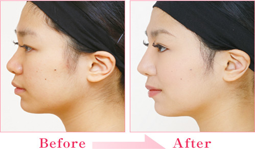 二重(埋没法/挙筋法)+隆鼻術+耳介軟骨移植