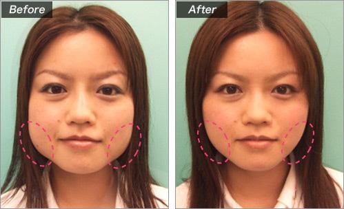 エラボトックス治療による小顔形成 の症例写真