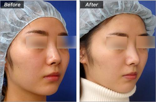 鼻中隔延长+耳介软骨移植的病例照片