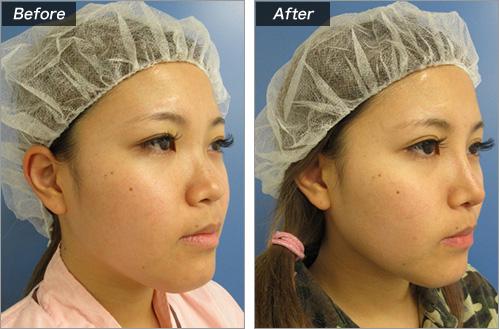 鼻プロテーゼ入れ+耳介軟骨移植+鼻尖形成 の症例写真